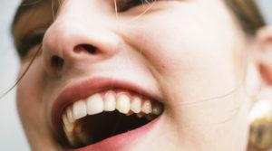 Implantes: Tudo o que você precisa saber